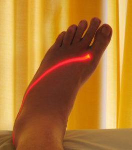 Terapia laserowa stopy